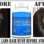 ultrax labs hair rush before and after